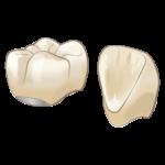 ビーノ歯科クリニック メタルボンド